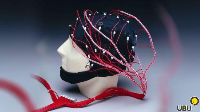 Реоэнцефалография головных артерий | фото 1 из 1